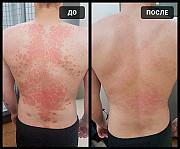 Негормональный крем Smart 27/ Смарт 27 от псориаза, дерматита, экземы, диатеза, аллергии, прыщей, ак Москва