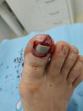 Лечение язвы на ноге Солнечногорск