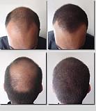 Средство от выпадения волос Москва