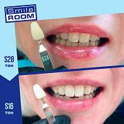 Косметическое отбеливание зубов на 4-30 тонов Омск