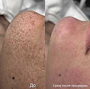 3Д чистка лица/дермабразия Екатеринбург